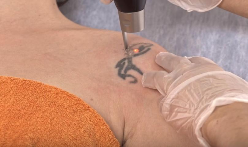 elimina-tatuaje-picosure