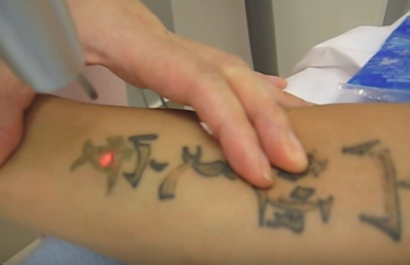 quitar-tatuajes-con-laser